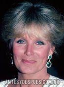 Linda Evans, 1982