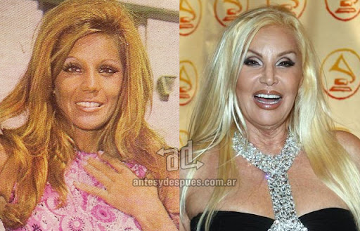 susana gimenez antes y despues de la cirugia plastica