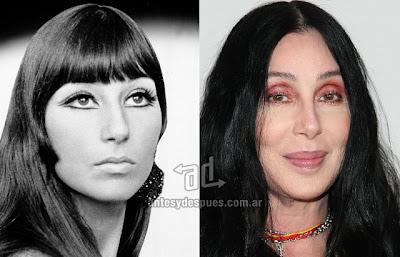 Cher antes y despues de la cirugia plastica