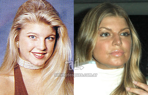 fergie antes y despues de la cirugia plastica