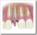 what dental implant