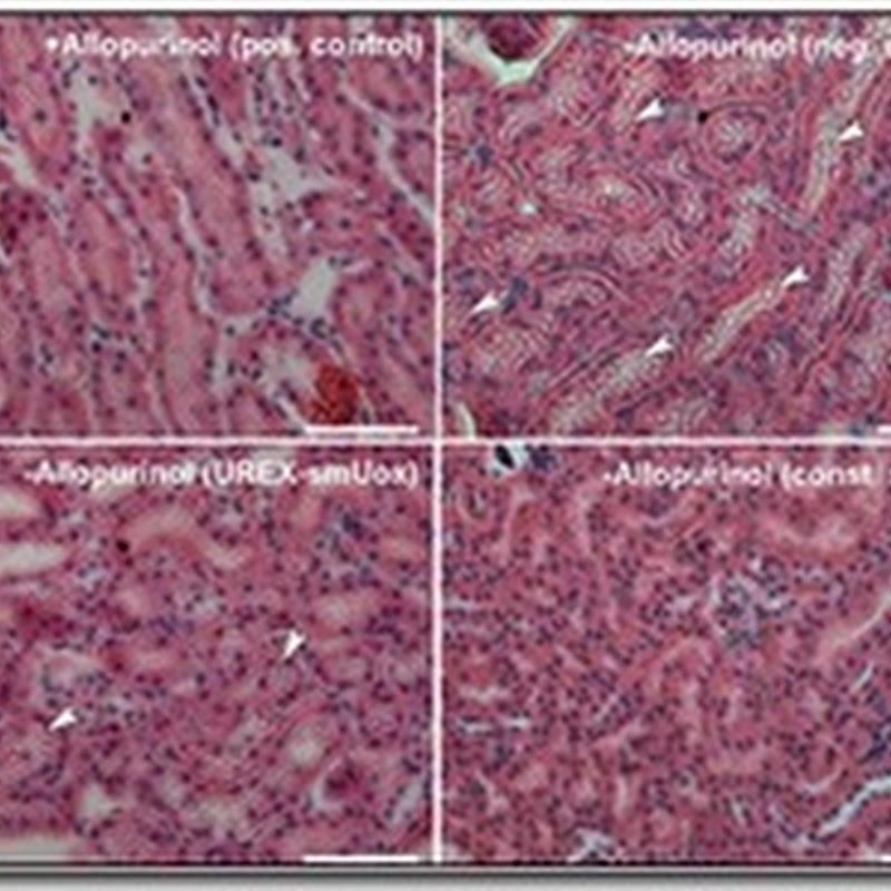 Prótesis molecular contra la gota