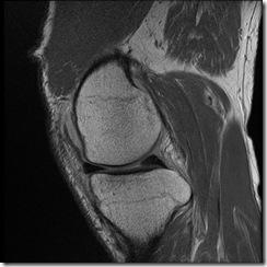 knee v2