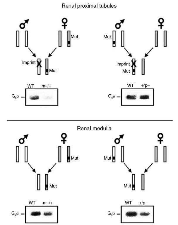 Imprinting at the GNAS locus and endocrine disease (Genetics)