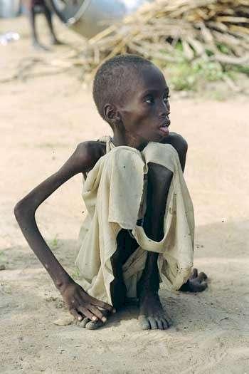 starving-boy.jpg