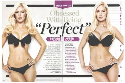 HEIDI-MONTAG-PLASTIC-SURGERY-PHOTOS-560x366
