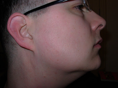 Right side, after 30 treatments.