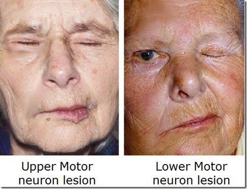 Lower motor neuron facial palsy
