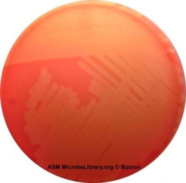 1546_streptococcus agalactiae fig36