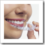 kawat gigi invisalign