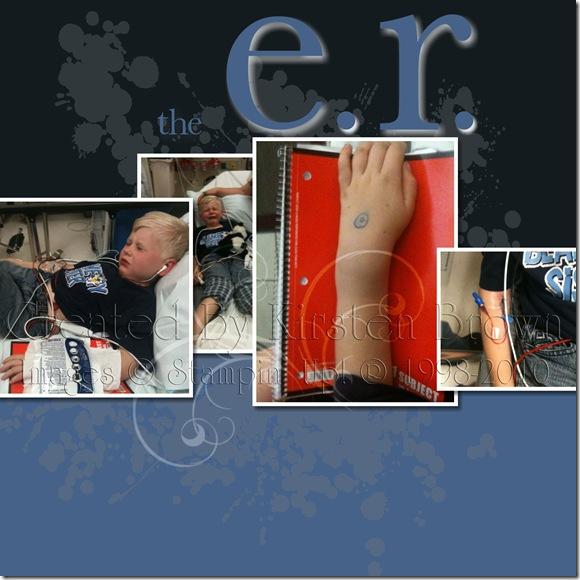 Spencer Broken Arm ER-002 copy
