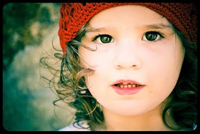 freckles 22