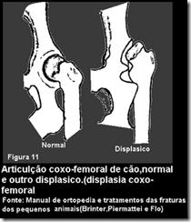 displasia coxo femoral