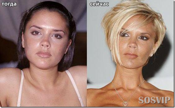 Celebridades antes e depois - Celebs before after.jpg (1)