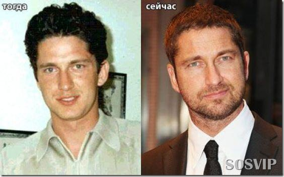 Celebridades antes e depois - Celebs before after.jpg (5)