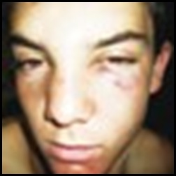 Scholtz Arnold 16 beaten at NoordKaap High School Kimberley by pupils who steal food