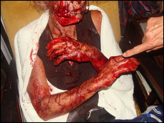 Theresa Eksteen Jan 26 2010 Stilfontein farm attacked by man with panga - survived