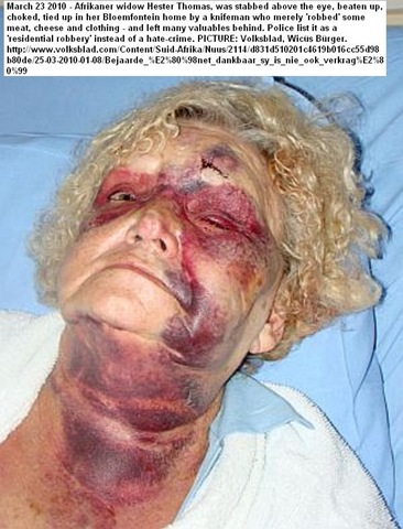 [Thomas Hester Beaten by armed thugs Bloemfontein Wicus Bürger Volksblad Mar242010[2].jpg]