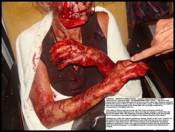 Viljoenskroon farm attack victim panga injuries THERESA - Jan 25 2010 ATTACK pic Carien Somers Dippenaar Facebook_thumb[4]