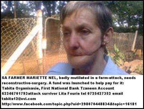 NEL Farmer Mariette injured panga attack FUNDRAISER reconstruction face Tabita Organisation