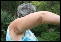 White woman attacked on StWinifred KZN beach 26Jan2011