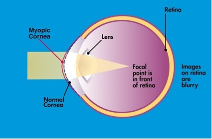 The Nearsighted (Myopic) Eye
