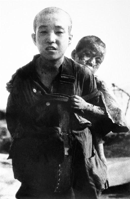 WWII NAGASAKI BOMB VICTIMS