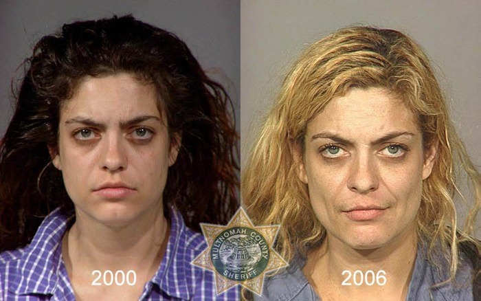 drug-abuse16