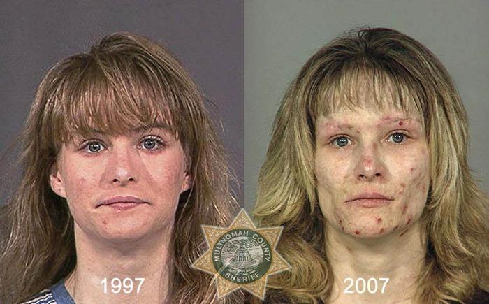 drug-abuse19