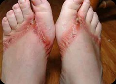 flip-flop-rash2