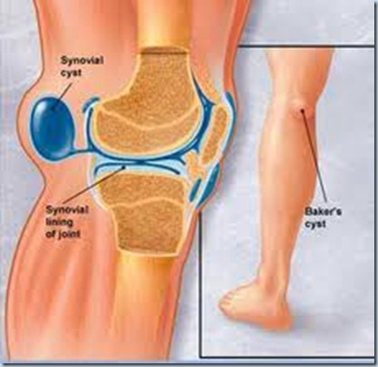 persendian lutut