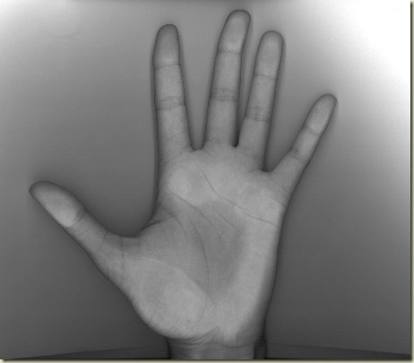 FCCO Mão esquerda  - escala cinza