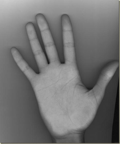 FCCO Mão direita  - escala cinza