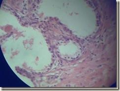 Cuboidal epithilium histology slide_thumb