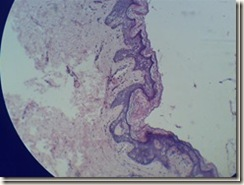 Stratified squmous keratinized epithelium microscope view_thumb