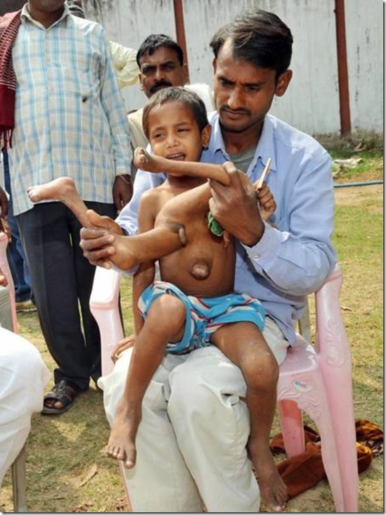 India´s octo-limbo kid wants help