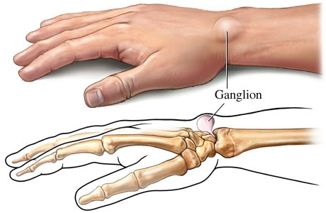 ganglion_cyst