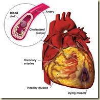 Cardiovascular.Disease