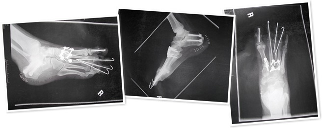 View Right foot xrays