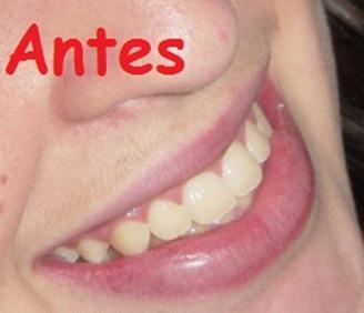 Dentes amarelados - foto modelo