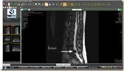 disk MRI image