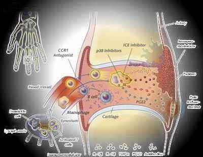 rheumatoid%2520arthritis Easy Arthritis  Solution West Augusta