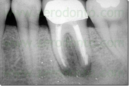 parodontite apicale