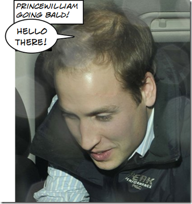 Prince William Going Bald