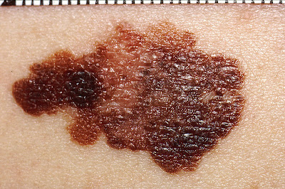 Image of melanoma