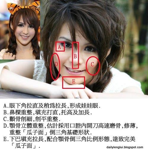 Mia/Boey Chan surgery