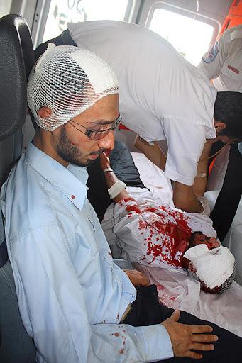 مجروحین حمله وحشیانه طلاب و مریدان علی محمد سربی(دستغیب) مسجد قبا