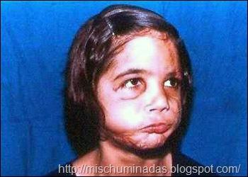 Niña sin rostro, antes y después de reimplantarle su cara