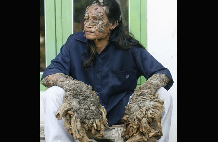 The Tree Man dari Indonesia