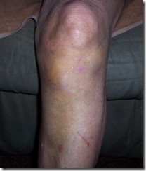 more knee 8.10 001